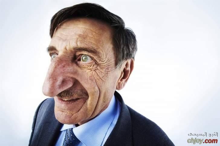 صاحب أطول أنف في العالم