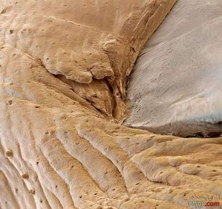مكان إتصال سطح الجلد بالظفر تحت المجهر